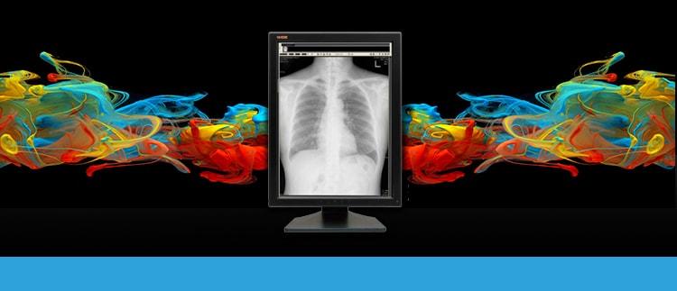 3 Megapixel LCD Monitor Display Repair Replacement Service and Sales