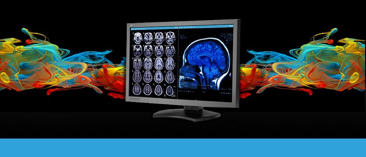 NEC MD302-C6 (MD-302C6) Diagnostic Color Display