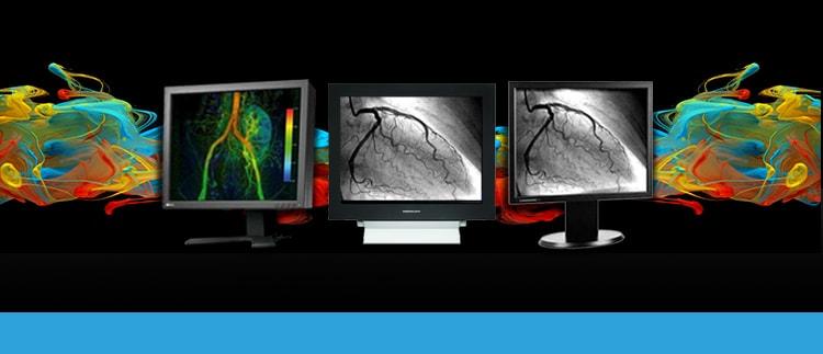 Cardiac Cath Lab Display Monitors