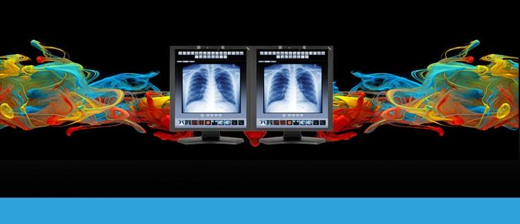 Diagnostic Monitor Display Repair Replacement Service