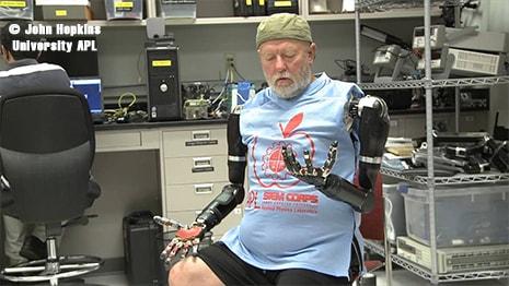 Amputee tests modular prosthetic limbs - Ampronix News