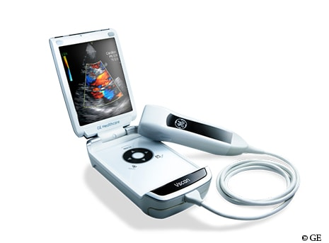 GE unveils the second generation of their compact Vscan Ultrasound.