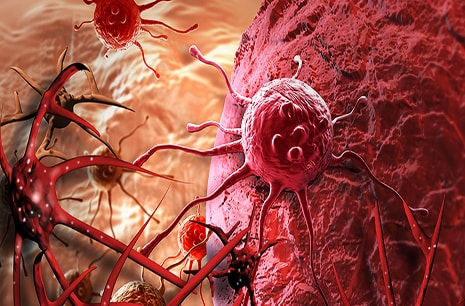 Educating Cells to Fight Back Against Malignant Tumors