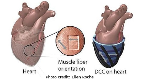 A new device to assist heart failure patients has successful animal trial.