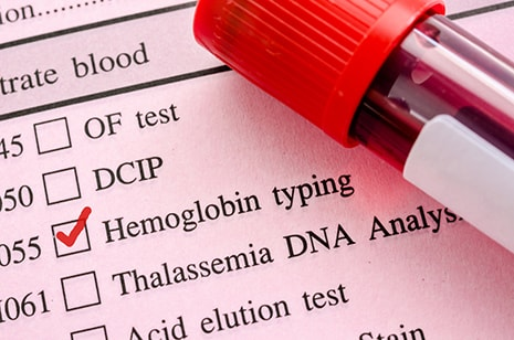Ampronix discusses new screening for blood conditions