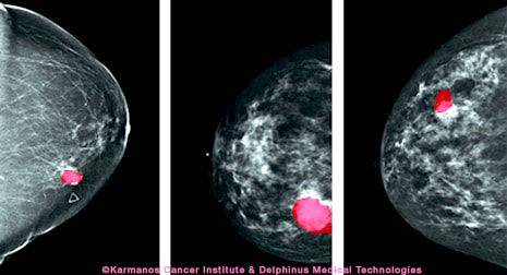Photoacoustic Breast Tissue Scanning Method