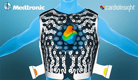 CardioInsight 3D cardiac mapping system receives approval by the FDA - Ampronix News