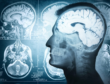 Disproportionately expanding brain leads to generosity - Ampronix News