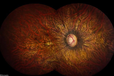 Gene Therapy to Cure Blindness Gains FDA Approval