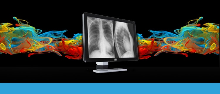 10 Megapixel LCD Monitor Display Repair Replacement Service and Sales