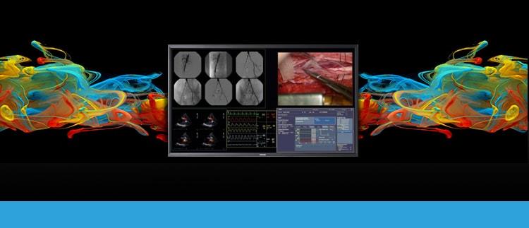 BARCO MDSC8258 (MD-SC8258) Surgical HD Quad Display Monitor