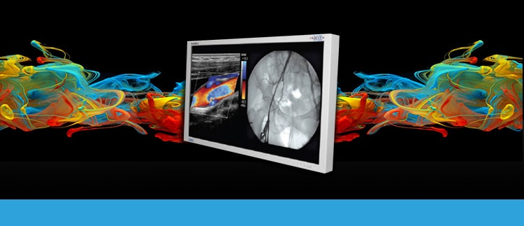 NDSsi Radiance Ultra-90R0068 (Ultra-90-R0068) Surgical Display