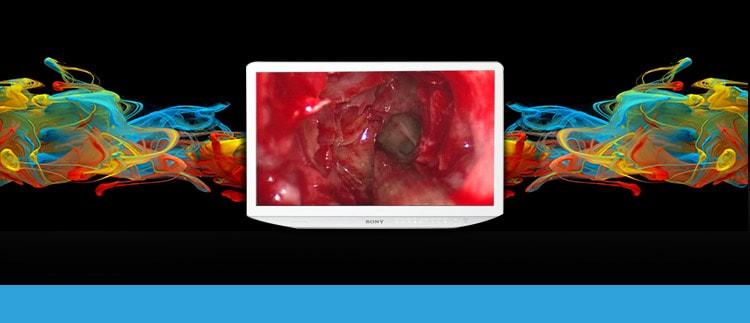 Sony LMD-2760-MD (LMD2760-MD) Medical Display