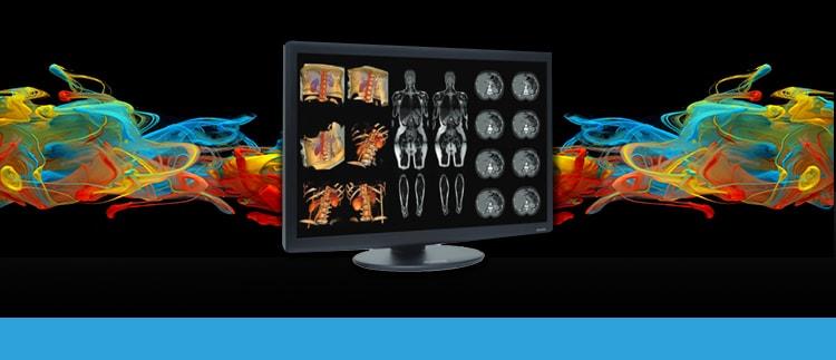 Radiology Display Repair Replacement Service