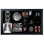 Optik View DC5801 58 Inch 8MP Medical Display