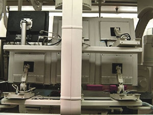 Rear view of Modalixx G202MG LCDs upgrade with Ampronix model #17AMS2L mounts on Siemens Bi-Cor model bi-plane cath lab