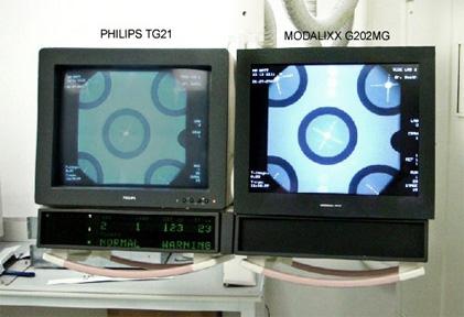 Philips TG21 vs Modalixx G202MG