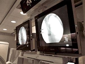 Modalixx G202MG on wall in the operator control room of a GE Legacy Advantix model Rad/Fluro room