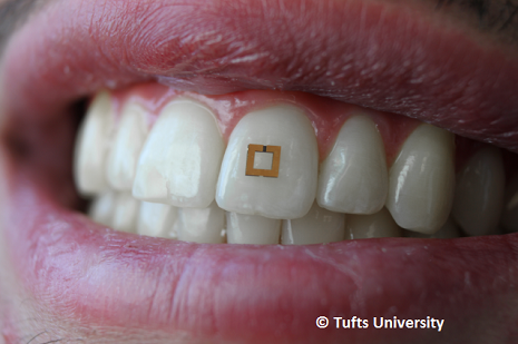 Miniature Tooth Sensor Measures Sugar, Salt, Alcohol Intake