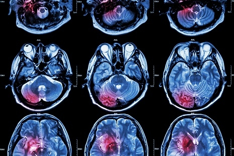 MRI may Safely Allow tPA Treatment to Increase Undetected Stroke Patients.