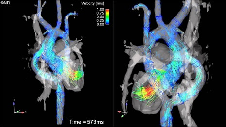 4-D MR Imaging Offers New Insight Previously Unavailable