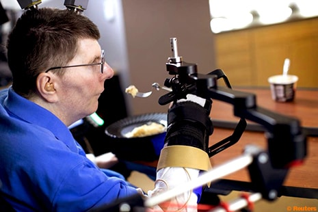 The first person with quadriplegia to have arm and hand movements restored with the help of temporary brain implants