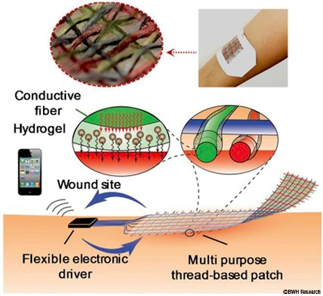 New Smart Bandage Could Independently Treat Wounds